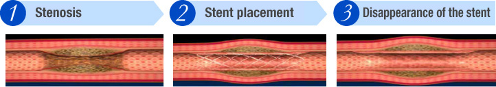 (1)Stenosis (2)Stent placement (3)Disappearance of the stent